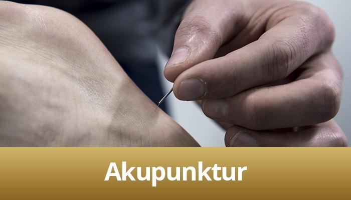 Behandlings billede af akupunktur, nål i fod