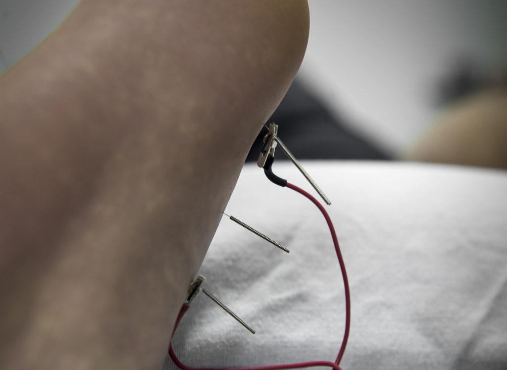 Billede af en akupunktur behandling i Kolding